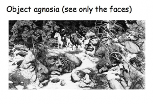 object agnosia see only faces